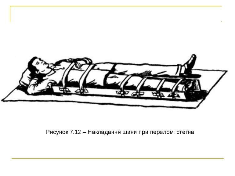 Рисунок 7.12– Накладання шини при переломі стегна