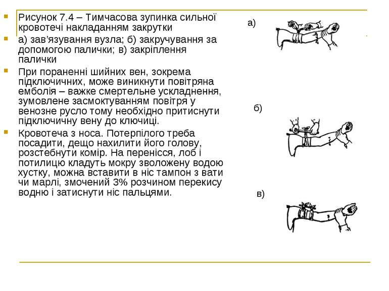 Рисунок 7.4– Тимчасова зупинка сильної кровотечі накладанням закрутки а) зав...