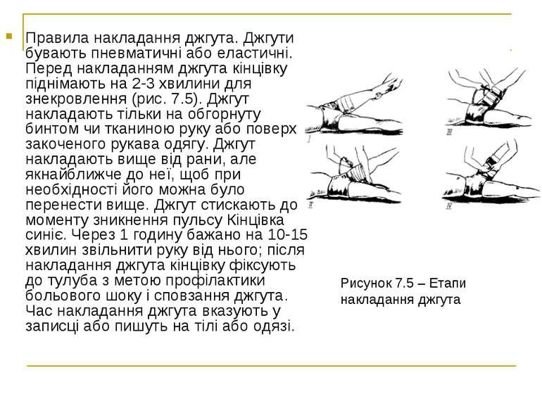 Правила накладання джгута. Джгути бувають пневматичні або еластичні. Перед на...