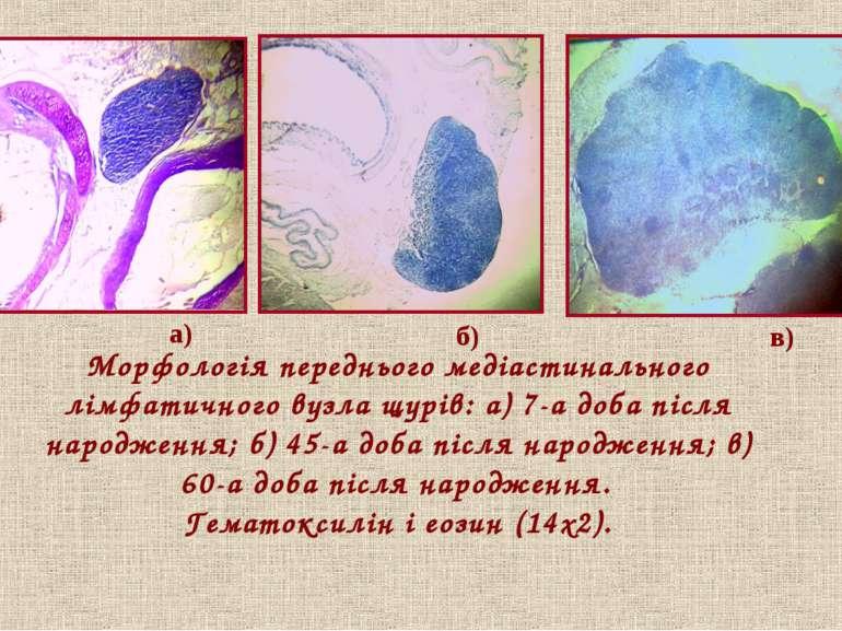 Морфологія переднього медіастинального лімфатичного вузла щурів: а) 7-а доба ...