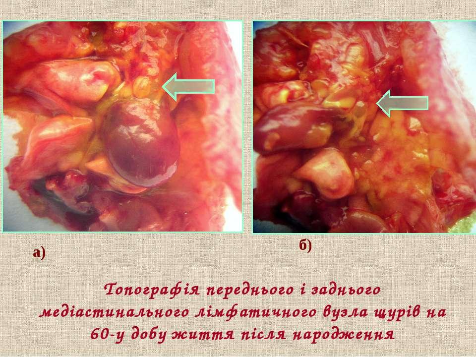 Топографія переднього і заднього медіастинального лімфатичного вузла щурів на...