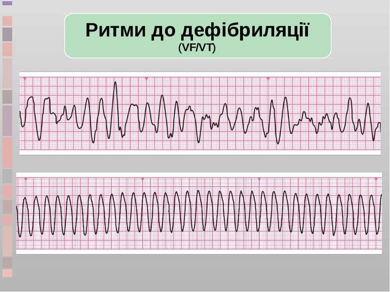 Ритми до дефібриляції (VF/VT)