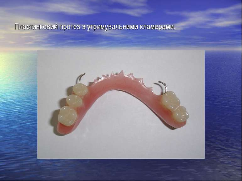 Пластинковий протез з утримувальними кламерами.