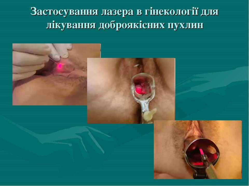 Застосування лазера в гінекології для лікування доброякісних пухлин