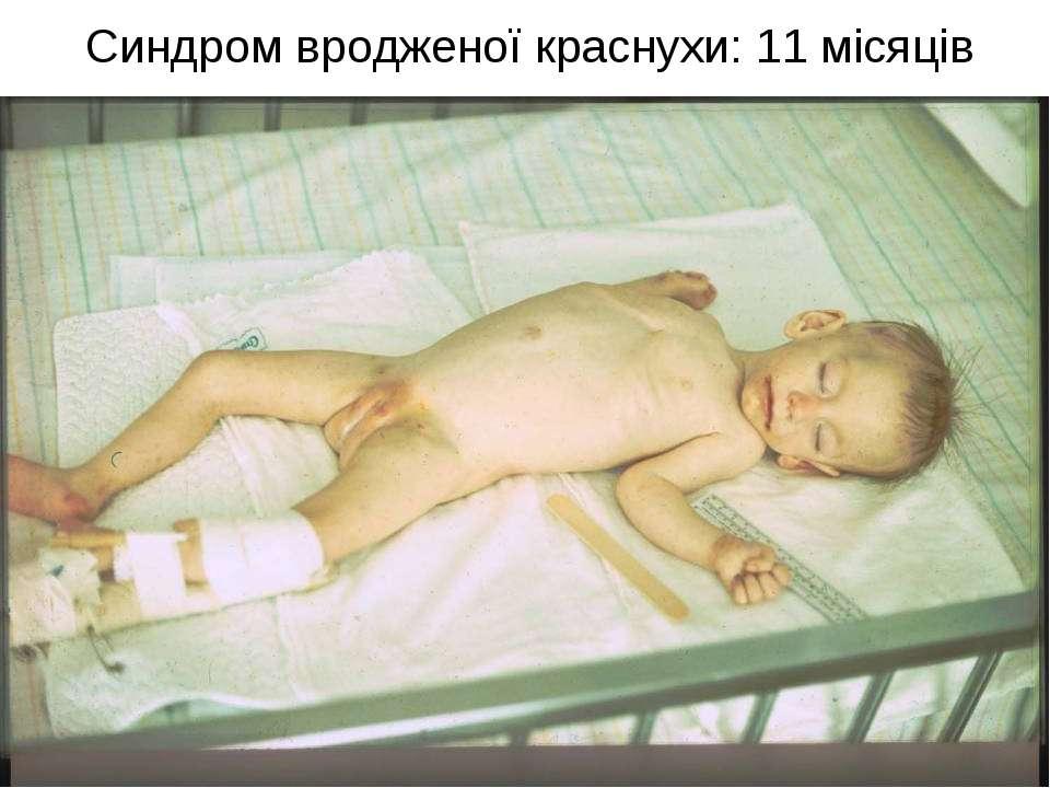 Синдром вродженої краснухи: 11 місяців