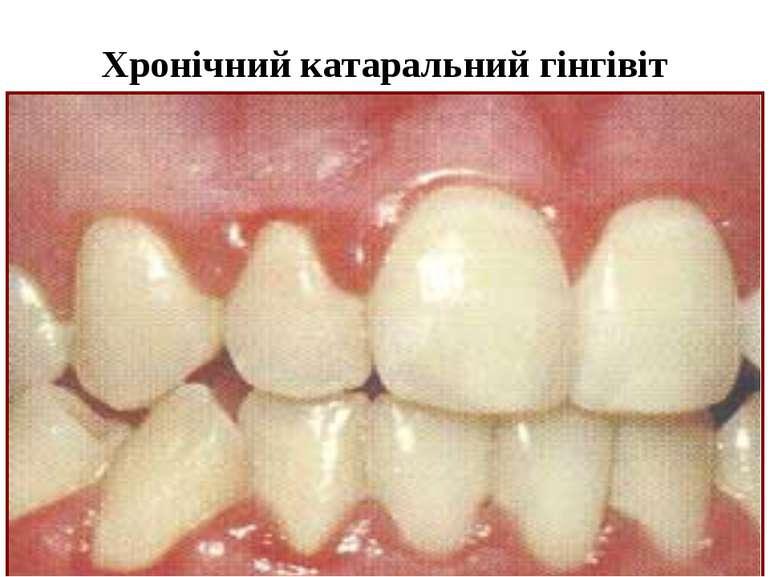 Хронічний катаральний гінгівіт
