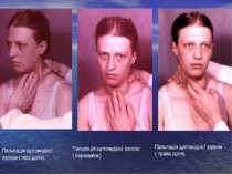 Пальпація щитовидної залози ( ліва доля). Пальпація щитовидної залози ( переш...