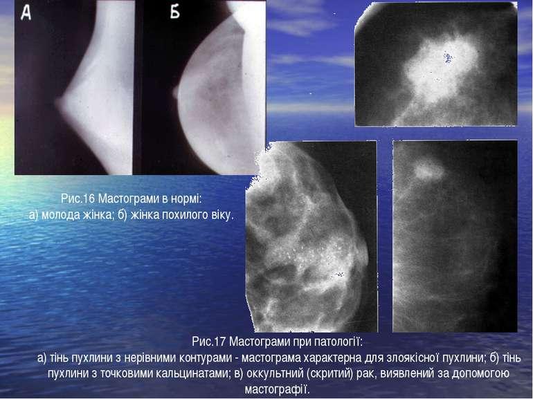 Рис.17 Мастограми при патології: а) тінь пухлини з нерівними контурами - маст...