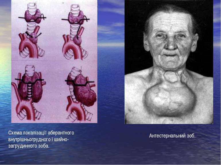 Антестернальний зоб. Схема локалізації аберантного внутрішньогрудного і шийно...