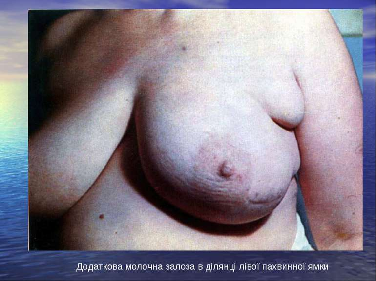 Додаткова молочна залоза в ділянці лівої пахвинної ямки
