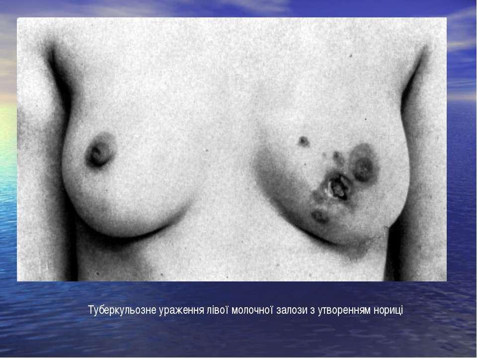 Туберкульозне ураження лівої молочної залози з утворенням нориці