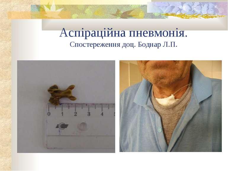 Аспіраційна пневмонія. Спостереження доц. Боднар Л.П.