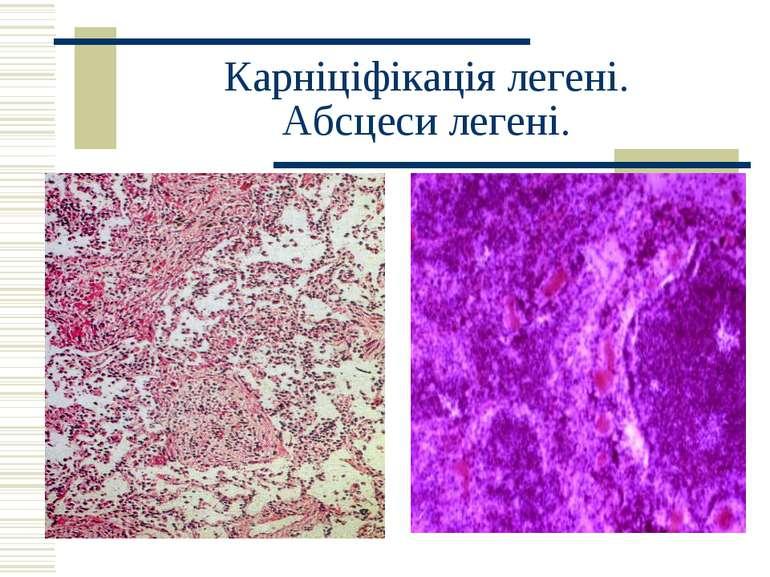 Карніціфікація легені. Абсцеси легені.