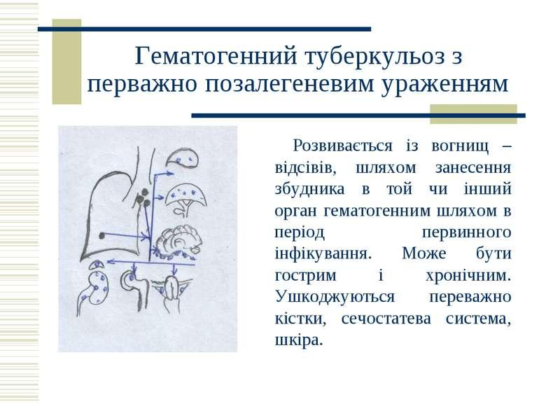 Гематогенний туберкульоз з перважно позалегеневим ураженням Розвивається із в...