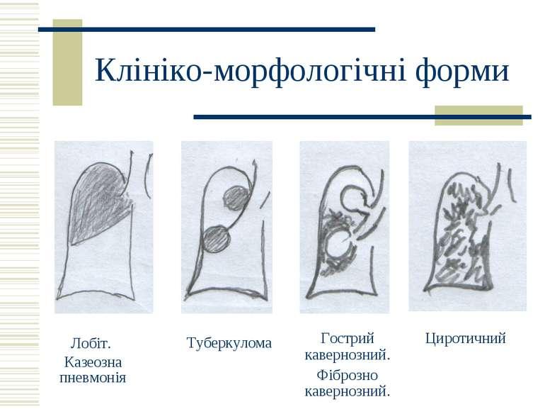 Клініко-морфологічні форми Лобіт. Казеозна пневмонія Туберкулома Циротичний Г...
