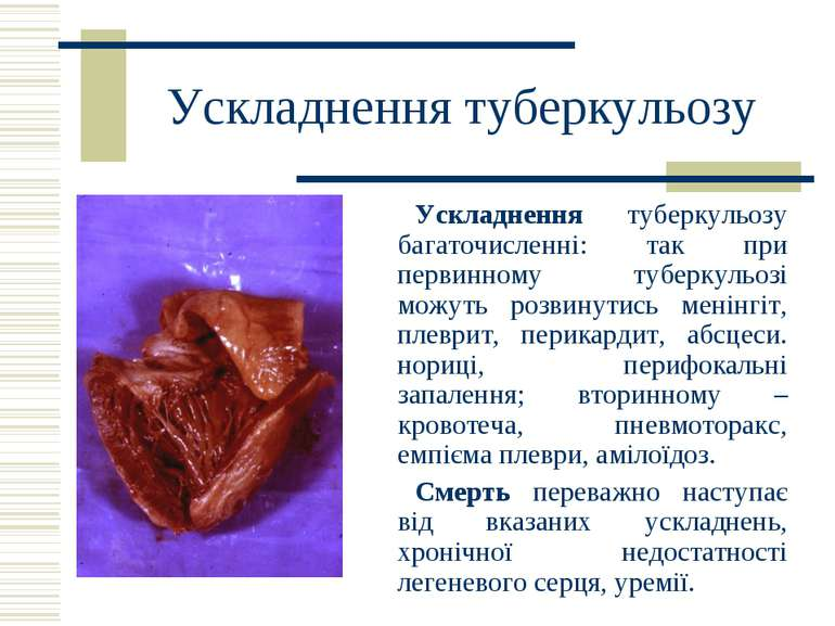 Ускладнення туберкульозу Ускладнення туберкульозу багаточисленні: так при пер...