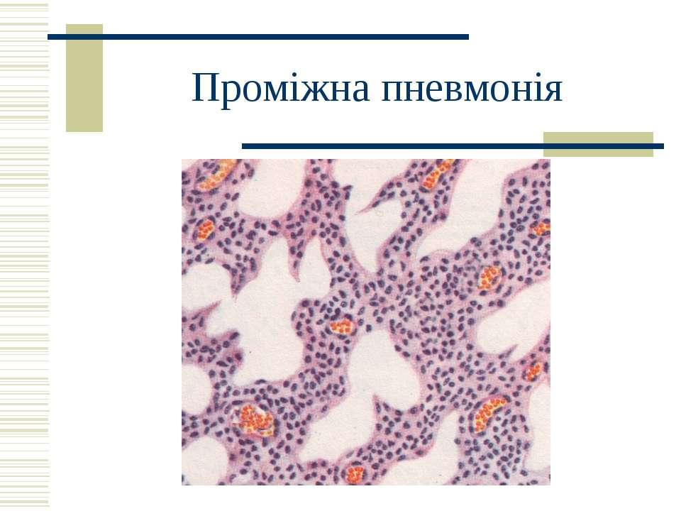 Проміжна пневмонія