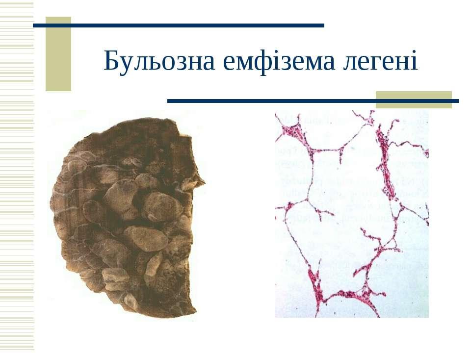 Бульозна емфізема легені