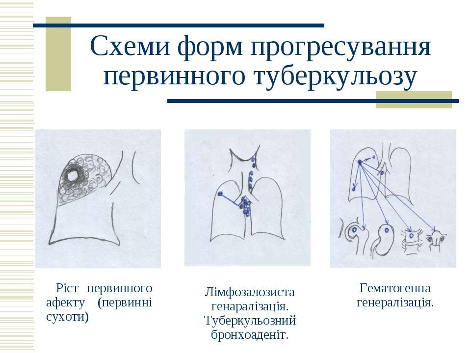 Схеми форм прогресування первинного туберкульозу Ріст первинного афекту (перв...