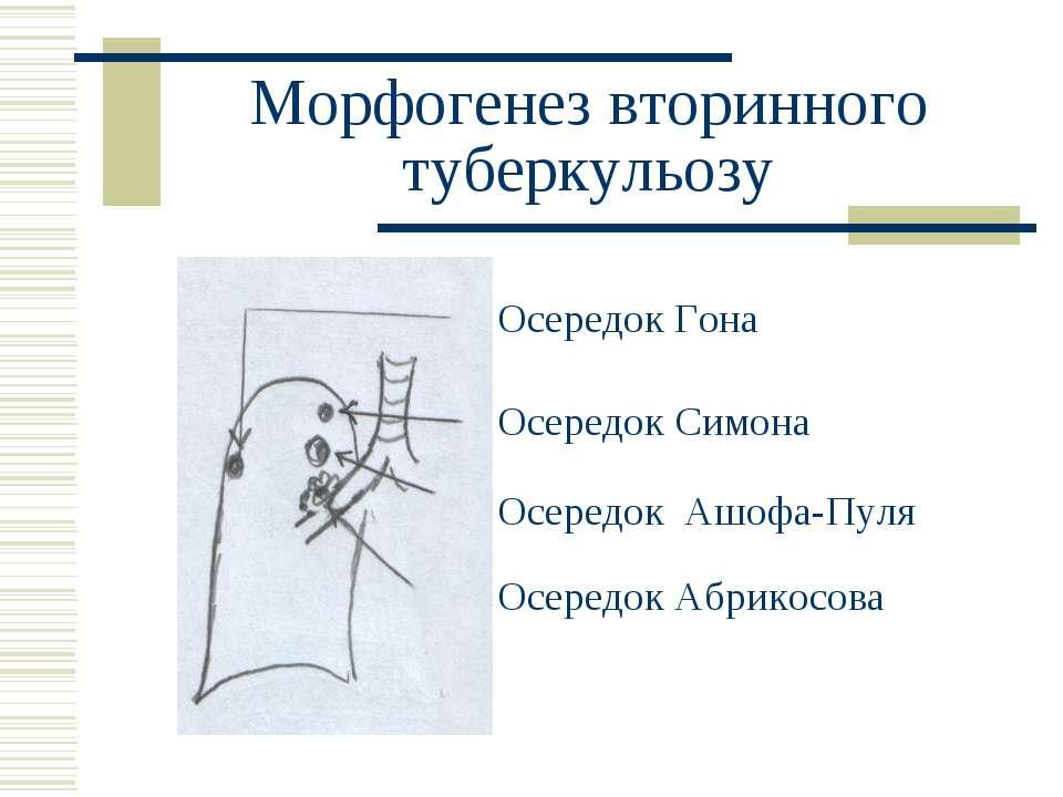 Морфогенез вторинного туберкульозу Осередок Гона Осередок Симона Осередок Ашо...