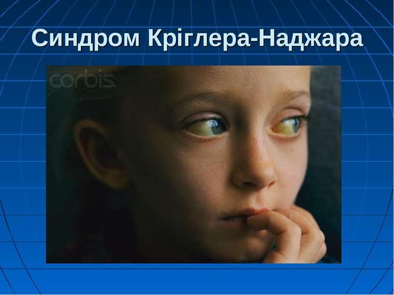Синдром Кріглера-Наджара