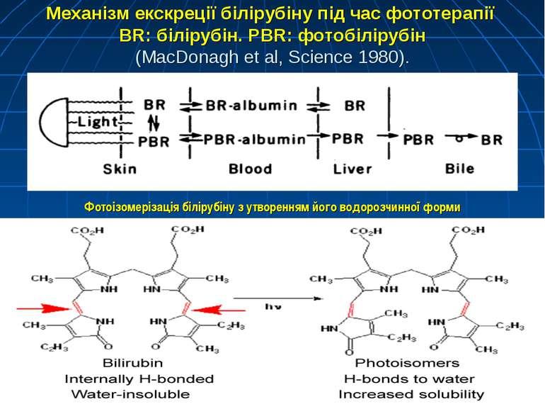 Механізм екскреції білірубіну під час фототерапії BR: білірубін. PBR: фотобіл...