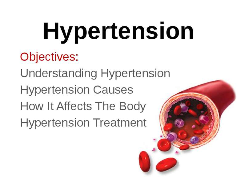 Hypertension Objectives: Understanding Hypertension Hypertension Causes How I...