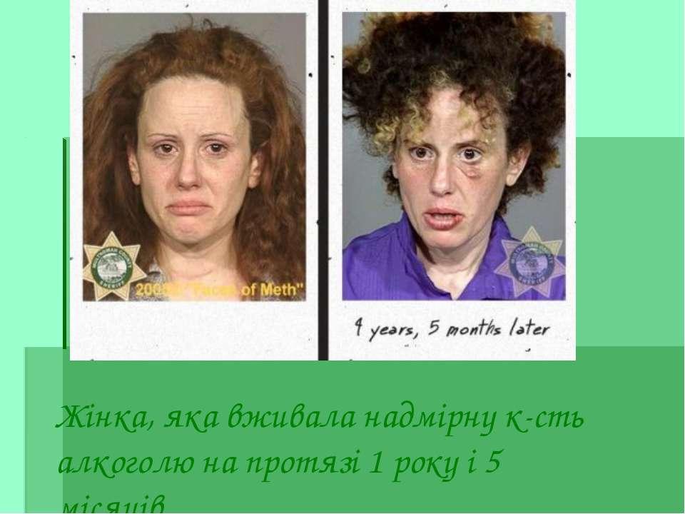 Жінка, яка вживала надмірну к-сть алкоголю на протязі 1 року і 5 місяців.