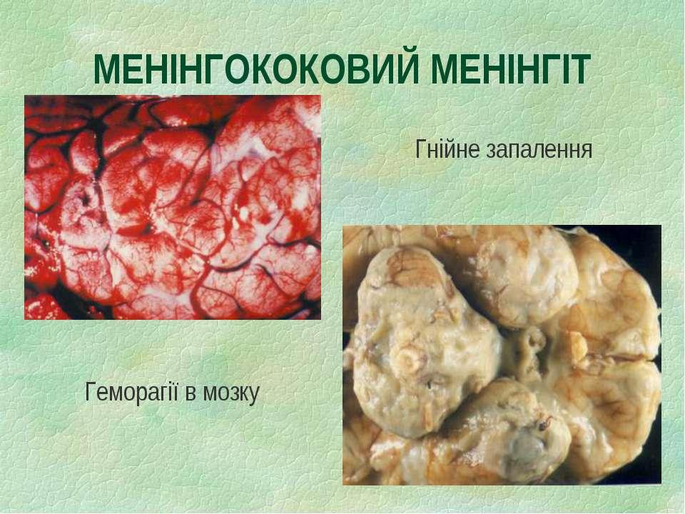 МЕНІНГОКОКОВИЙ МЕНІНГІТ Гнійне запалення Геморагії в мозку