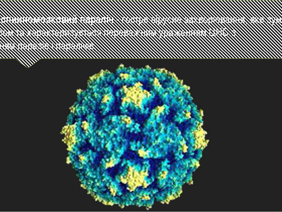 Дитячий спинномозковий параліч - гостре вірусне захворювання, яке зумовлене п...