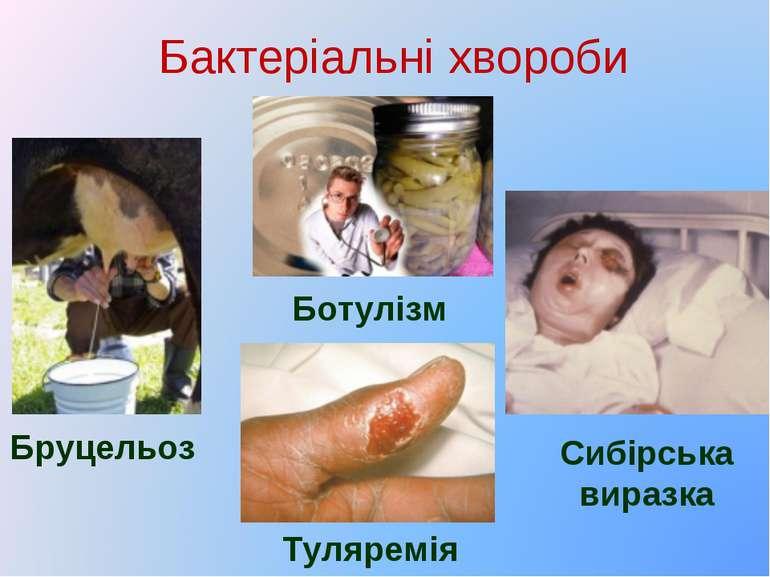 Бактеріальні хвороби Бруцельоз Ботулізм Туляремія Сибірська виразка