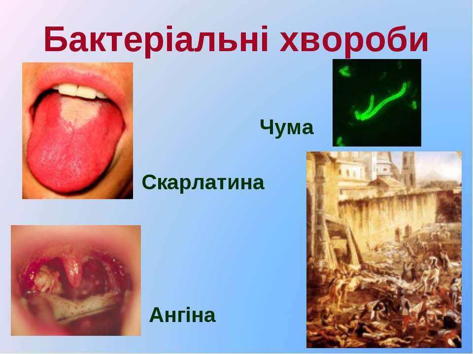 Бактеріальні хвороби Скарлатина Ангіна Чума