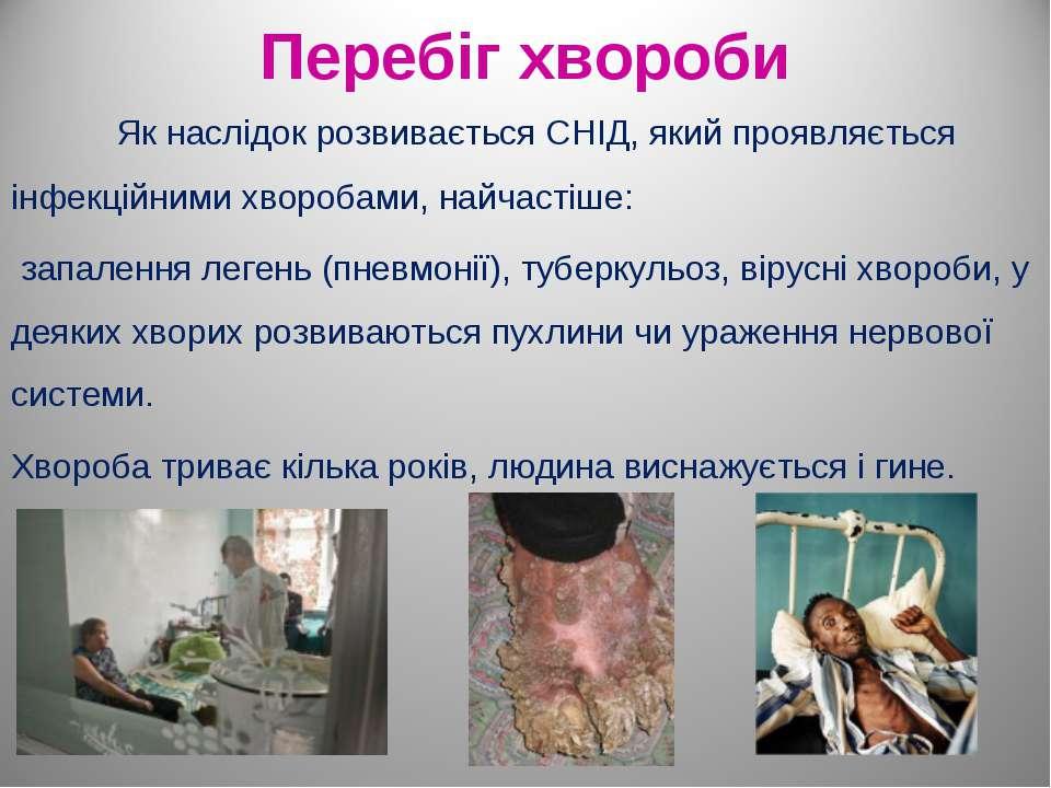 Перебіг хвороби Як наслідок розвивається СНІД, який проявляється інфекційними...