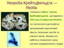 Хвороба Крейтцфельдта — Якоба Описане в 1920 р. Гансом Крейтцфельдтом, дослід...