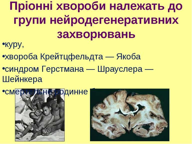 Пріонні хвороби належать до групи нейродегенеративних захворювань куру, хворо...