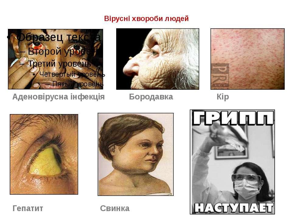 Вірусні хвороби людей Аденовірусна інфекція Бородавка Кір Гепатит Свинка