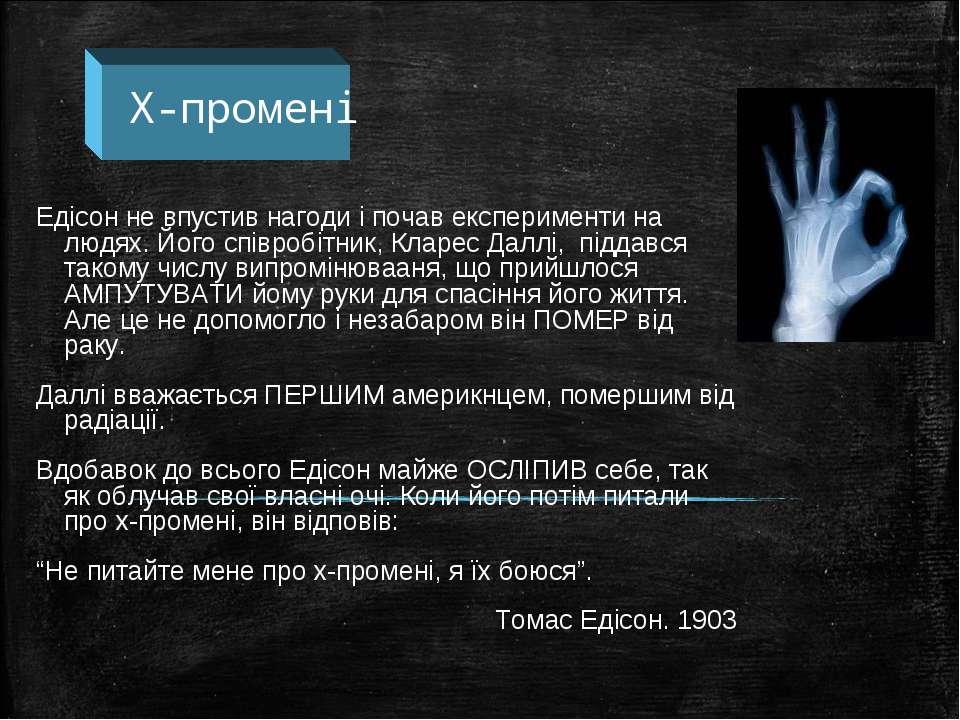 Х-промені Едісон не впустив нагоди і почав експерименти на людях. Його співро...