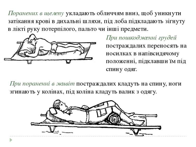 Поранених в щелепу укладають обличчям вниз, щоб уникнути затікання крові в ди...