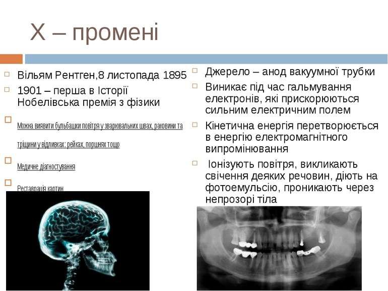 Х – промені Вільям Рентген,8 листопада 1895 1901 – перша в Історії Нобелівськ...