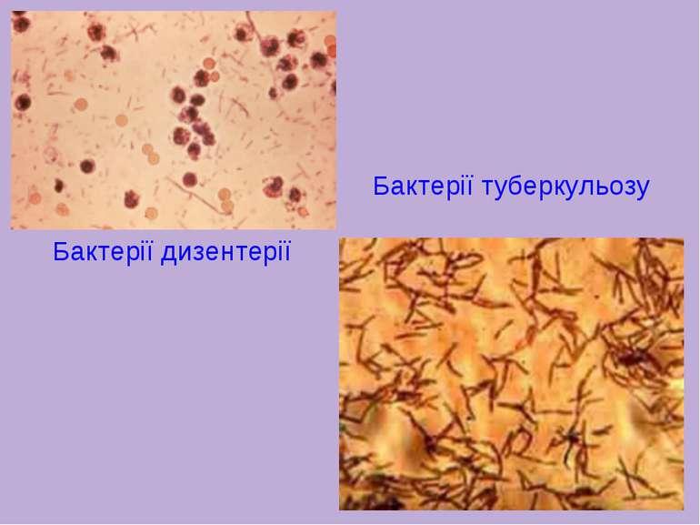 Бактерії дизентерії Бактерії туберкульозу