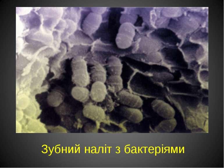 Зубний наліт з бактеріями