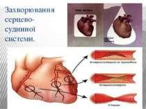 Захворювання серцево-судинної системи.