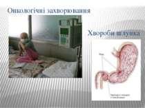 Онкологічні захворювання Хвороби шлунка