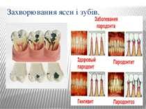 Захворювання ясен і зубів.
