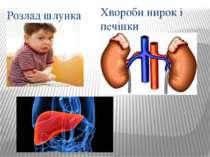 Розлад шлунка Хвороби нирок і печінки