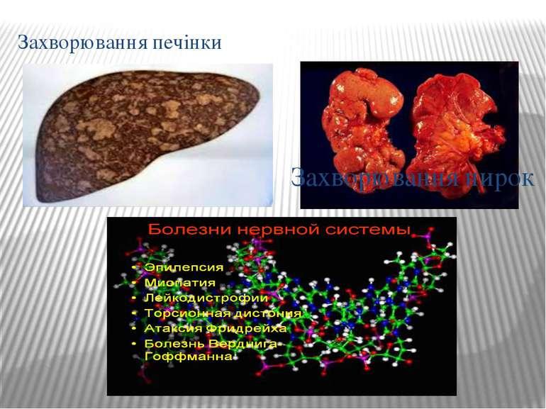 Захворювання печінки Захворювання нирок