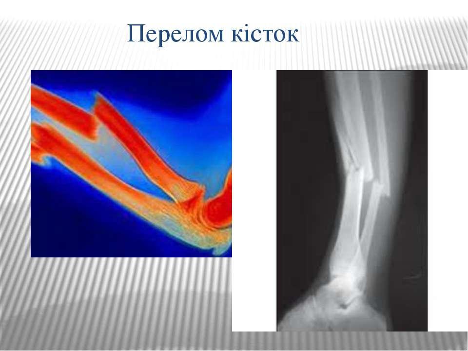 Перелом кісток