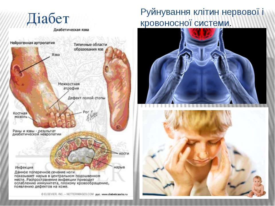 Діабет Руйнування клітин нервової і кровоносної системи.