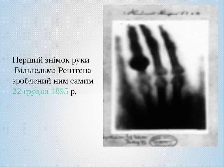 Перший знімок руки Вільгельма Рентгена зроблений ним самим 22грудня 1895р.