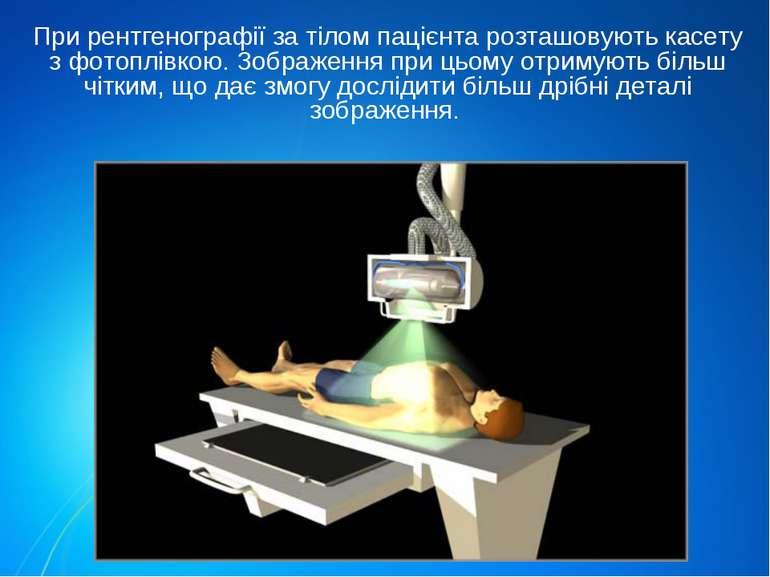 При рентгенографії за тілом пацієнта розташовують касету з фотоплівкою. Зобра...